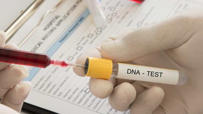 3df317544e8 DNA-test: Amsterdammer komt erachter dat hij 1/4e buiten de ring is